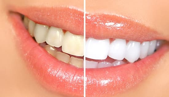 teeth whitening Coronado